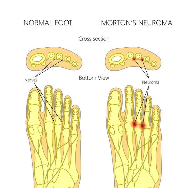 e9f6250b00 How Can I Naturally Treat My Morton's Neuroma? - AustinTexasChiro.com